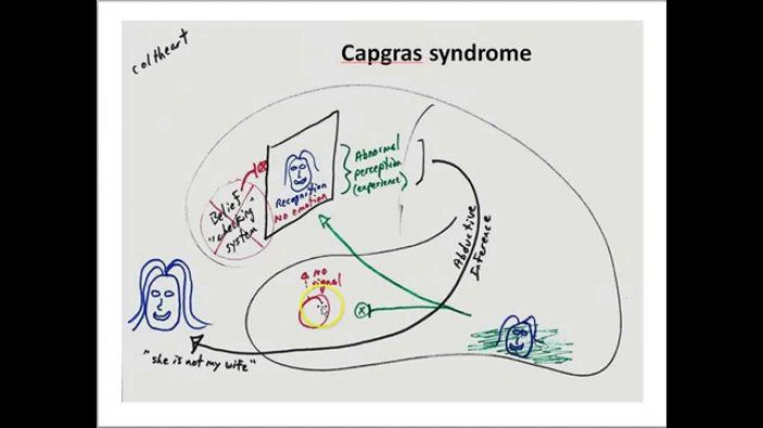 ক্যাপগ্রাস সিনড্রোম: অপরকে সন্দেহ করার রোগ 1